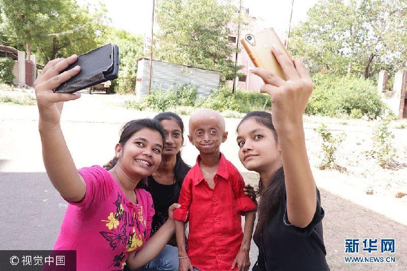 2017年9月11日(具体拍摄时间不详),印度中央邦,来自印度中央邦的11岁男孩Shreyash Barmate外表看起来就像是个老人,这是因为他患有早衰症,衰老速度是同龄人的8倍。虽然只有11岁,Shreyash已经长了皱纹,并且还出现了秃发,四肢也比同龄人要脆弱。尽管很有可能在2年后死去,Shreyash并没有放弃对未来的希望,他唱歌,弹奏乐器,骑自行车,开汽车,也会去游泳。他说自己长大后想成为一名歌手。***_****** EXCLUSIVE *** MADHYA PRADESH, INDIA - SEPTEMBER 2017: Shreyash Barmate, 11, who suffers from Progeria, poses for a picture with his family and friends at his home on September, 2017 in Madhya Pradesh, India. An inspirational boy with an ultra-rare genetic condition that makes him look like an old man refuses to let it hold him back ? and even drives a car. Shreyash Barmate, 11 who lives in Madhya Pradesh, India, has progeria ? a condition which causes rapid aging in children. The condition leaves Shreyash suffering from baldness, heavy wrinkles and weakened limbs. The Progeria Research Foundation believe the syndrome is so rare it affects around 1 in 20 million people. PHOTOGRAPH BY Rare Shot / Barcroft Images London-T:+44 207 033 1031 E:hello@barcroftmedia.com - New York-T:+1 212 796 2458 E:hello@barcroftusa.com - New Delhi-T:+91 11 4053 2429 E:hello@barcroftindia.com www.barcroftimages.com PHOTOGRAPH BY Rare Shot / Barcroft Images