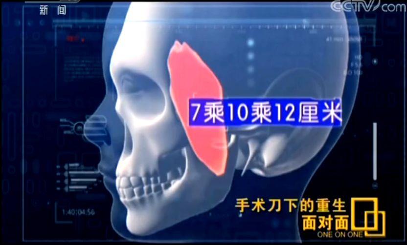 澳门旅游金沙在线官网:11位医生、8小时接力_从女孩颅内取出芒果样肿瘤