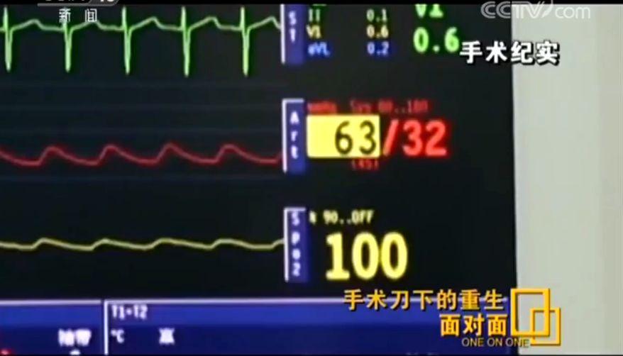 惊心动魄!11位医生、8小时接力,从女孩颅内取出芒果样肿瘤
