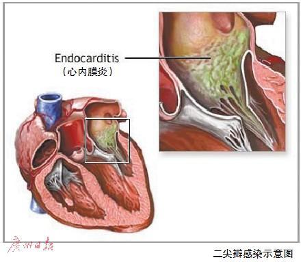 患者的心内膜炎示意图